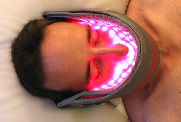 tandpine kæbehulebetændelse kæbesmerter visdomstand paradentose migræne hovedpine udslæt arvæv operation ansigt